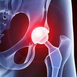 Prothèse de hanche en ambulatoire