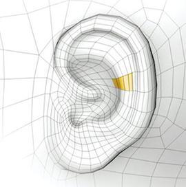 Une technique innovante pour les oreilles décollées